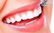 50% намаление на почистване на зъбен камък + полиране в Дентален център АЛТЕЯ Д-р Лиляна Павлова