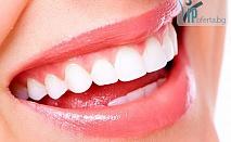 50% намаление на почистване на зъбен камък + полиране в МЦ Младост Д-р Станислава Стоянова